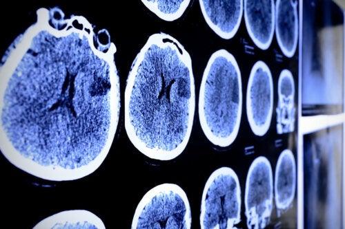 ¿Qué es un astrocitoma y cómo se puede tratar