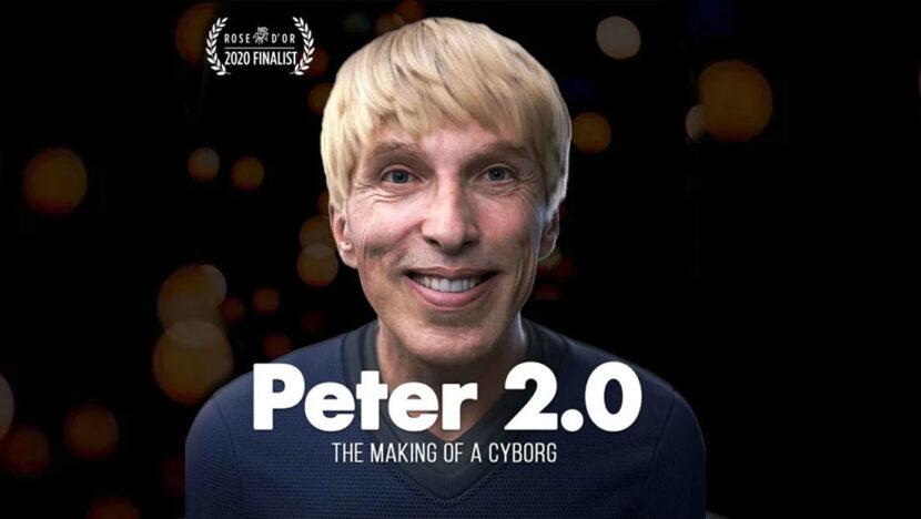 El científico que se convirtió en el primer cíborg del mundo