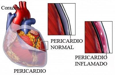 Pericarditis: síntomas, causas y tratamiento
