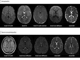 Qué pasa cuando el COVID-19 irrumpe en el cerebro