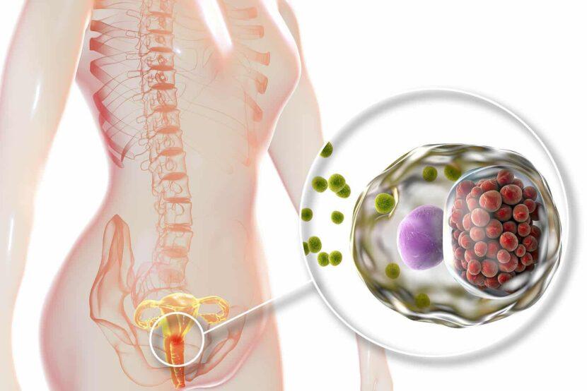 Las 11 enfermedades de transmisión sexual (ETS) más comunes